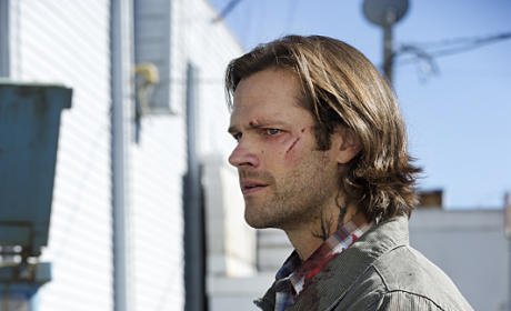 Infected Sam - Supernatural Season 11 Episode 2