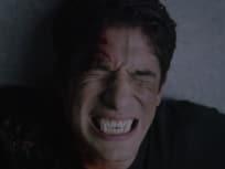 Teen Wolf Season 5 Episode 11
