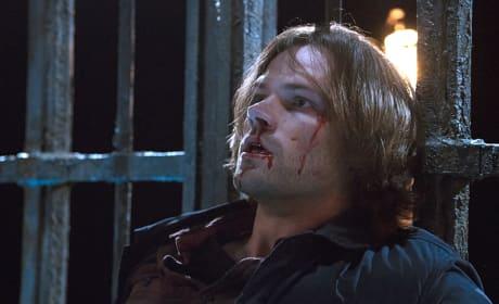 Bloody and beaten - Supernatural Season 11 Episode 10