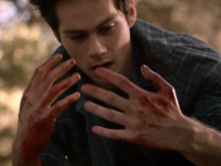 Teen Wolf Season 3 Episode 19