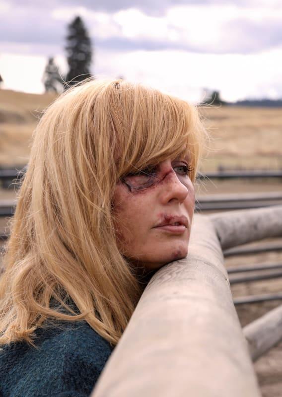 Injured beth watches rip yellowstone s2e8