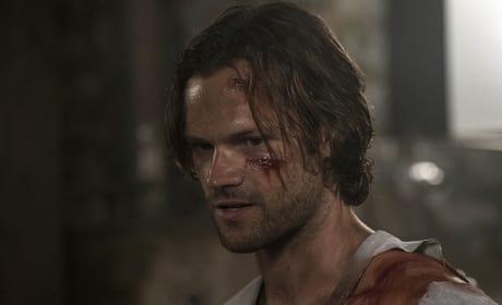 Sam is a bloody mess - Supernatural Season 12 Episode 2