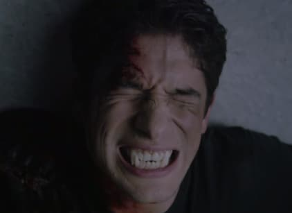 Watch Teen Wolf Season 5 Episode 11 Online